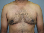 Gynecomastia (Puffy Nipples/ Male Chest Correction)